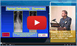 Spinal Deformity for Residents